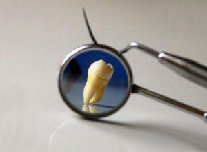 К чему снятся зубы во сне: лечить, выпадать, чистить